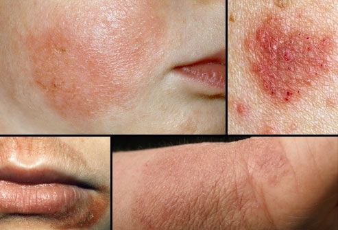 Eczema pictures-1