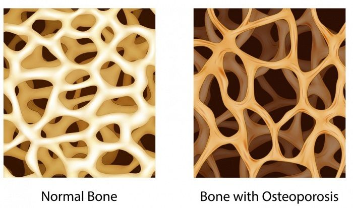 osteoporosis images