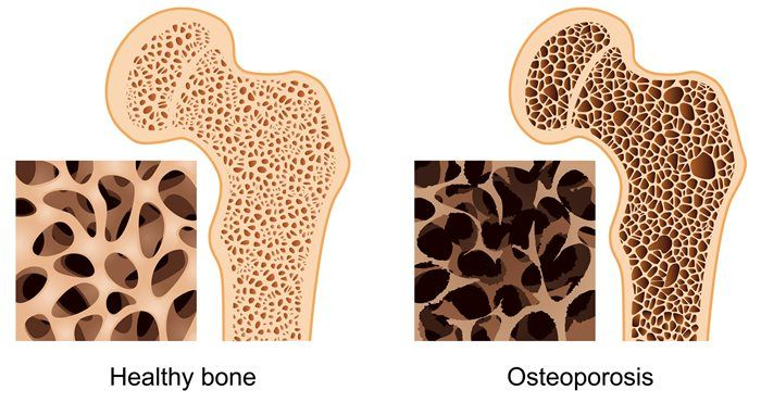 osteoporosis pictures