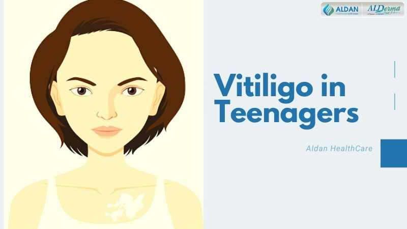 Vitiligo in Teenagers