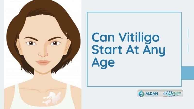 Can Vitiligo Start At Any Age