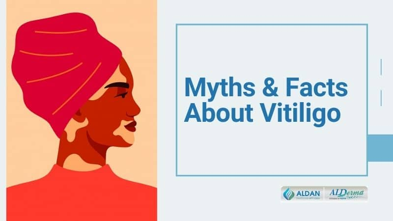 Myths and Facts About Vitiligo