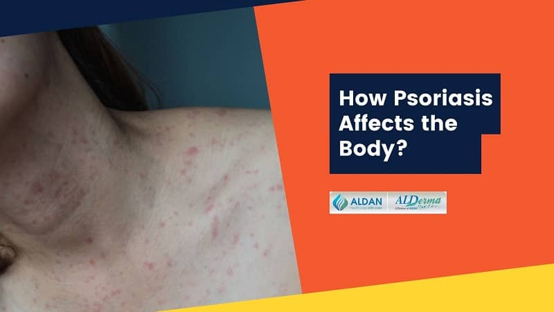 How Psoriasis Affects the Body