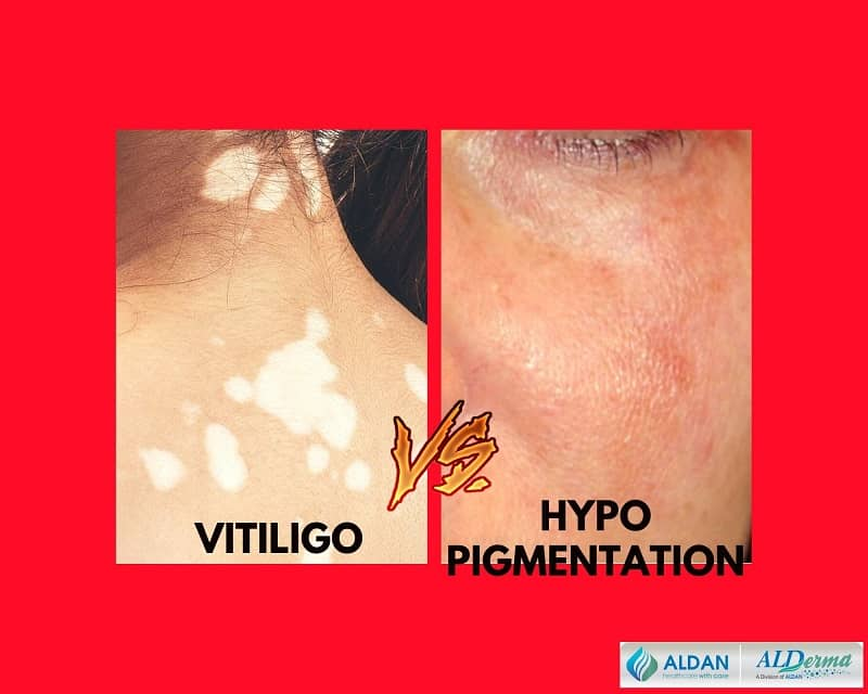 vitiligo vs hypopigmentation