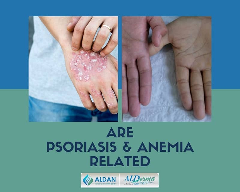 Are Psoriasis and Anemia Related
