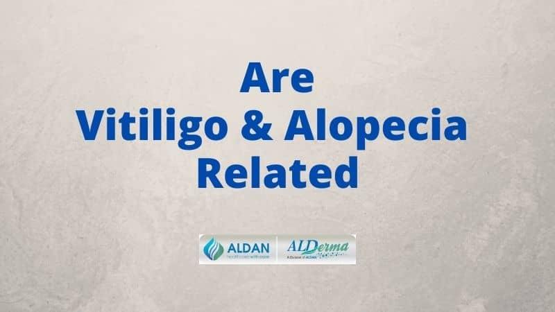 Are Vitiligo And Alopecia Related