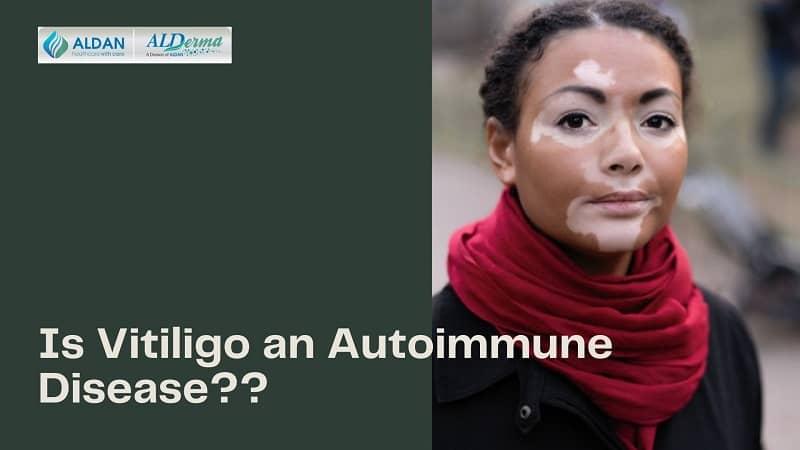 Is Vitiligo an Autoimmune Disease