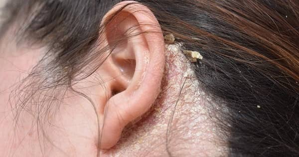 Psoriasis behind Ears Pictures - 2