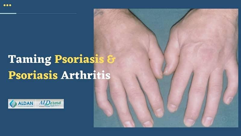 Taming Psoriasis and Psoriasis Arthritis